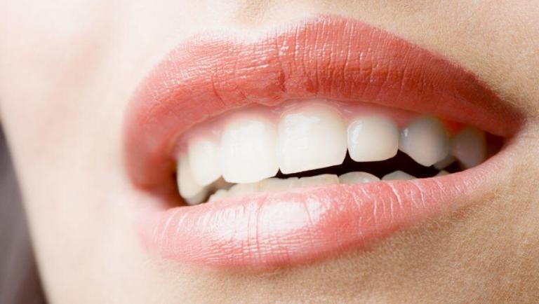 tanden bleken Amersfoort